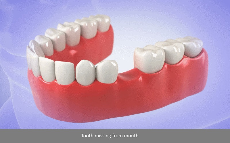 Dental Implant Procedure Single Tooth step 1