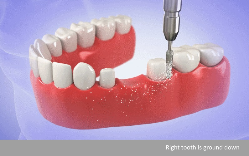 How dental bridges Encinitas step 2