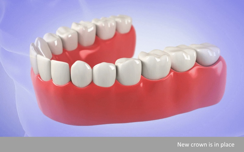 How dental bridges 4
