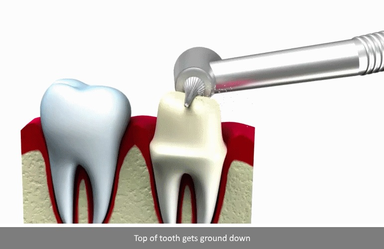 How dental crown step 2