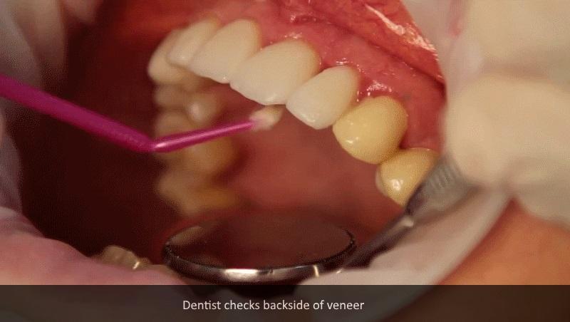 How dental veneers 5