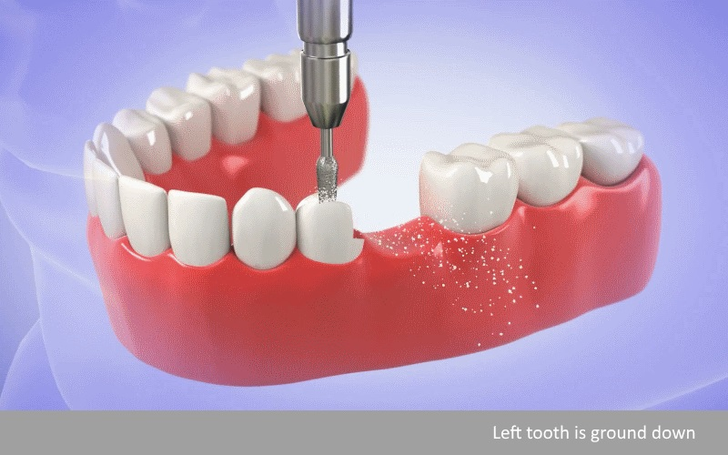dental bridges Procedure Encinitas step 1
