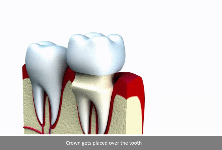 dental crown Procedure step 3