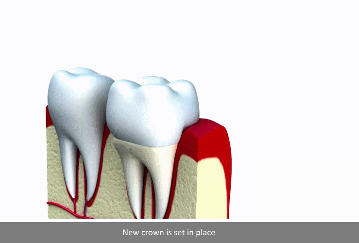 dental crown Procedure 4