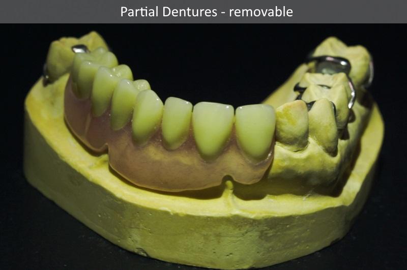 Partial denture Encinitas CA