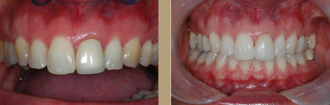 dental crown Encinitas CA