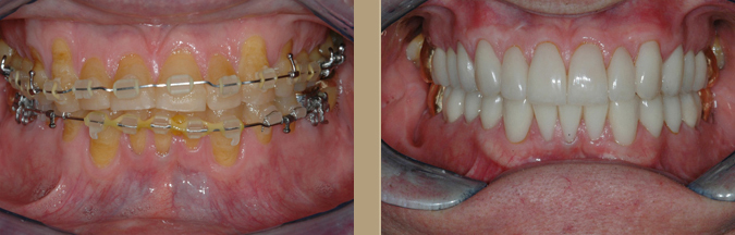 Full Mouth Restorations treatment