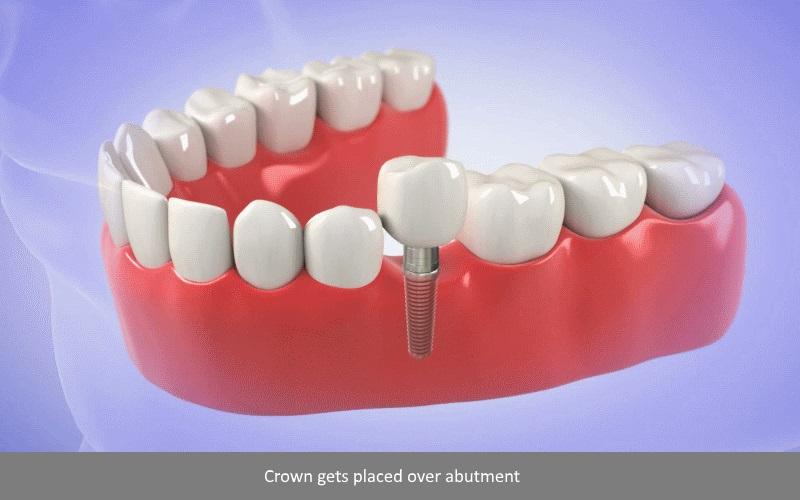 Dental Implant Procedure Single Tooth 5