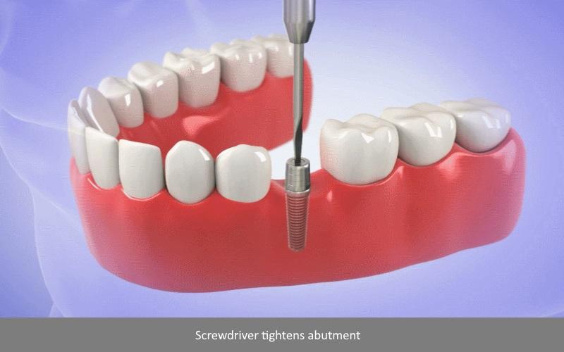Dental Implants Surgery step 4