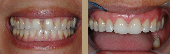 dental veneers Procedure step 6