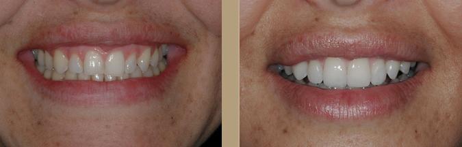 dental veneers Procedure 9