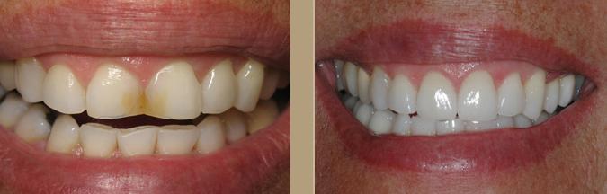 How dental veneers 8