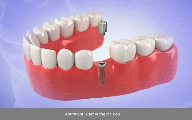 Dental Implants Surgery 3