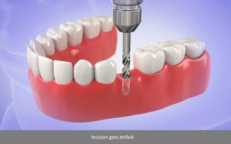Dental Implant Procedure 2