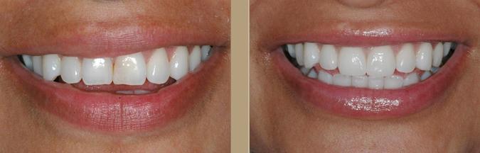 dental veneers Procedure Single Tooth 7
